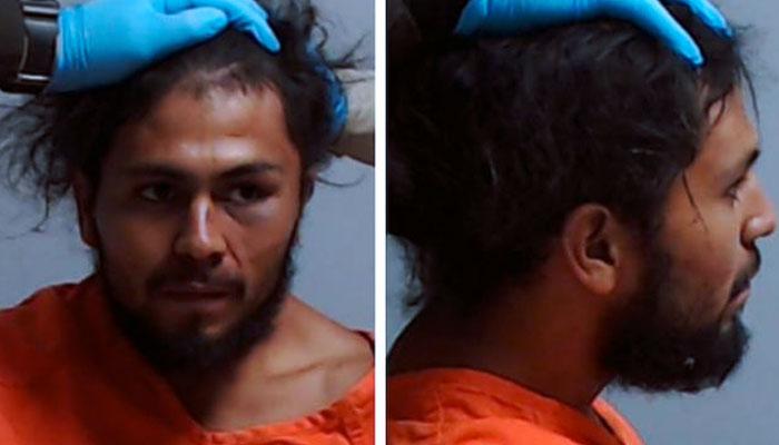 Denuncian a la Policía por romper el cuello a un detenido: le tuvieron que sujetar la cabeza para la foto