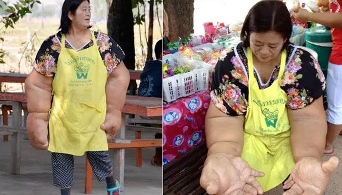 Una mujer que sufre macrodistrofia lipomatosa y tiene los brazos más grandes del mundo