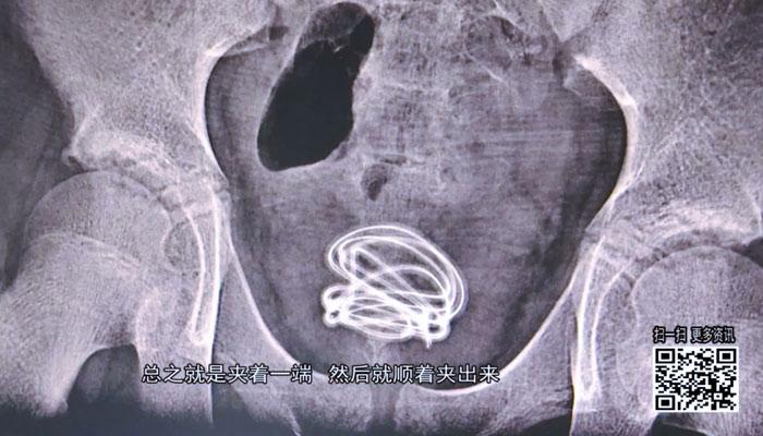 Un adolescente inserta un cable de 70 centímetros en su propia uretra porque quería saber de dónde proviene la orina