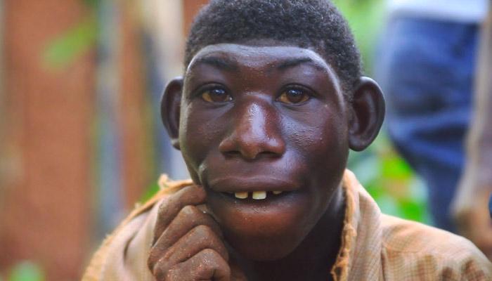 Ellie, el Mowgli de la vida real, al que acosan y le llaman ''mono''