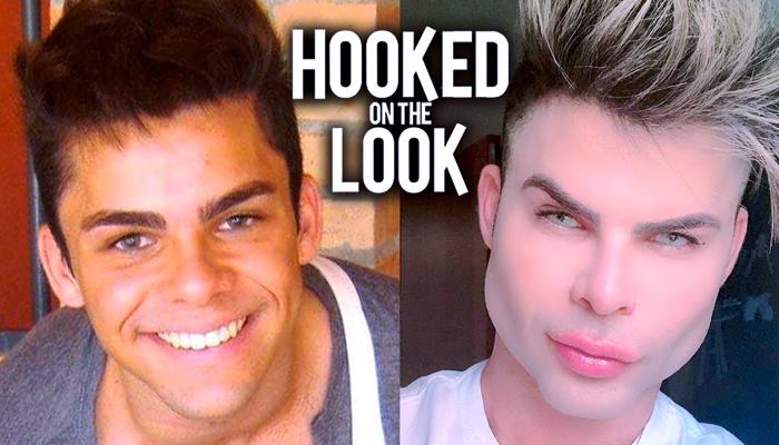 Un influencer brasileño se gasta 80.000 dólares en tener ''la cara perfecta''