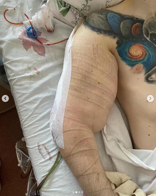 El 'Hulk ruso' muestra sus tríceps tras una segunda cirugía para extraer la mezcla casera que se inyectó para aumentar su volumen muscular