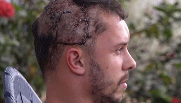 Un buceador sobrevive a un mordisco de un cocodrilo en la cabeza