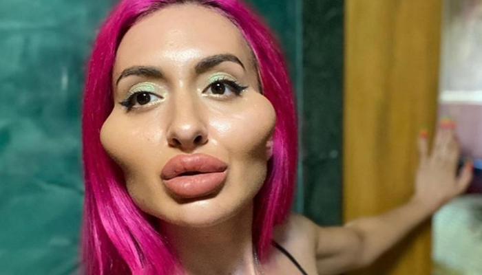 Anastasia Pokreshchuk, la modelo ucraniana obsesionada por conseguir los pómulos más grandes del mundo
