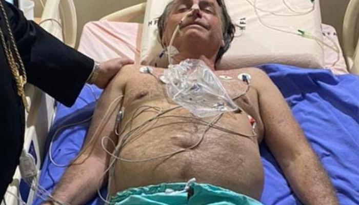 Médicos han retirado cerca de 1 kg de contenido fecal de Bolsonaro con una sonda nasogástrica
