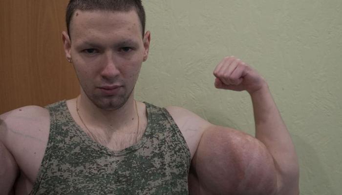 Los brazos del Popeye ruso explotan durante un combate de artes marciales mixtas
